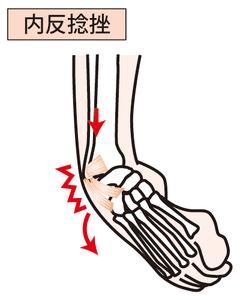 足関節の内反捻挫のイラスト