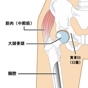 股関節:大腿骨頭と寛骨臼