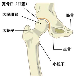 股関節:大腿骨頭と寛骨臼のイラスト