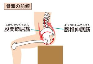 骨盤が前傾した座り方のイラストです。腰が反ってしまい、常に筋肉に力が入ってしまうことが特徴です。