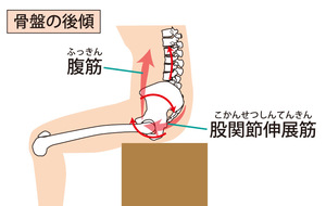 骨盤が後傾した座り方のイラストです。腰から背中が丸くなってしまい、持続的に筋肉が引き伸ばされ緊張してしまう状態になります。