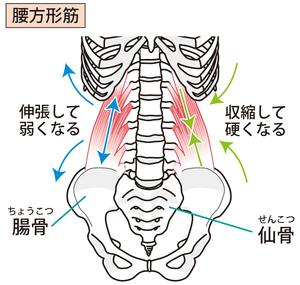 腰方形筋のイラストです。骨盤から肋骨に付着していることがわかります。