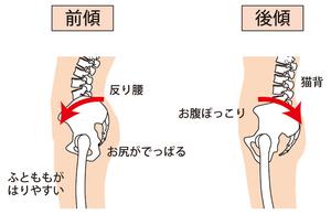 骨盤が前傾して腰が反ってしまうイラスト