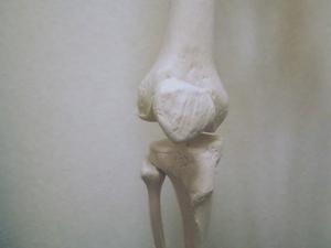 膝関節の骨模型