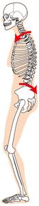 胸郭が後弯し骨盤は後傾しているイラスト