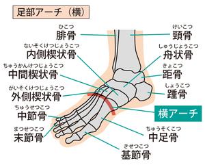 足部のMP横アーチのイラスト
