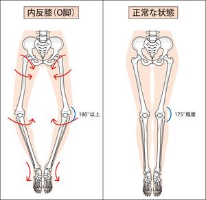 正常な膝とO脚