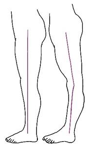 反張膝のイラスト