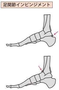足関節インピンジメント
