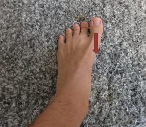 母趾を伸展させる