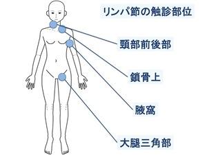リンパ節の触診部位