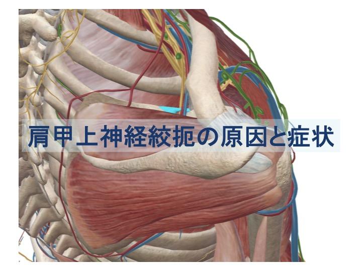 肩甲上神経絞扼の原因と症状のトップ画像