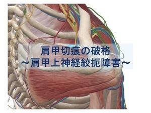 肩甲切痕の破格のトップ画像