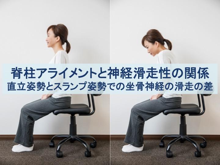 脊柱アライメントと神経滑走性の関係のトップ画像