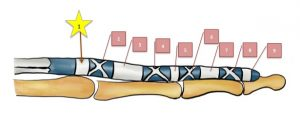 指の腱鞘のイラスト