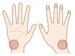 手首尺側の痛み